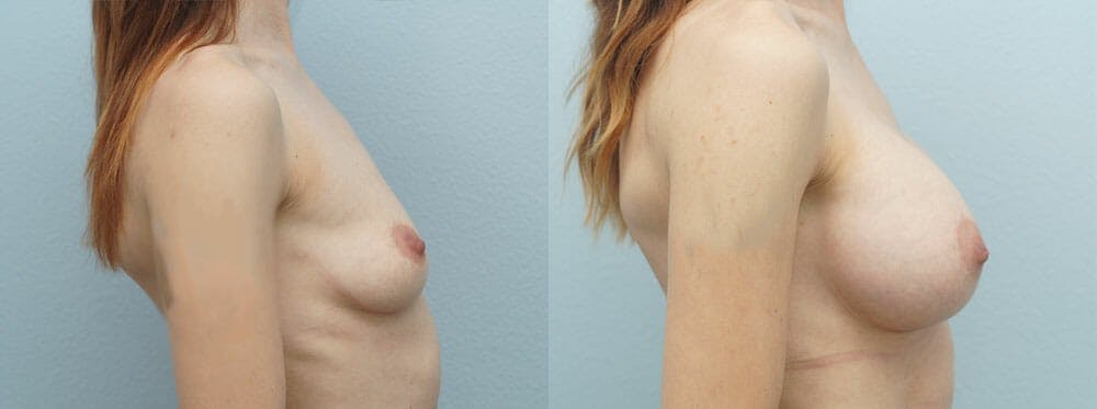 Breast Augmentation Gallery - Patient 48821303 - Image 3