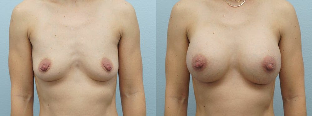 Breast Augmentation Gallery - Patient 48821305 - Image 1