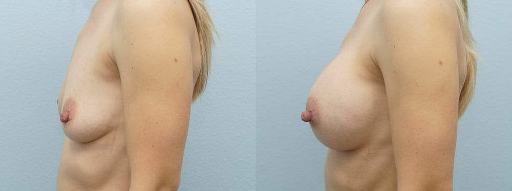 Breast Augmentation Gallery - Patient 48821305 - Image 2