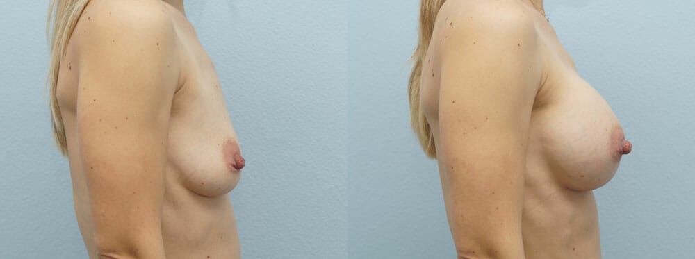 Breast Augmentation Gallery - Patient 48821305 - Image 3