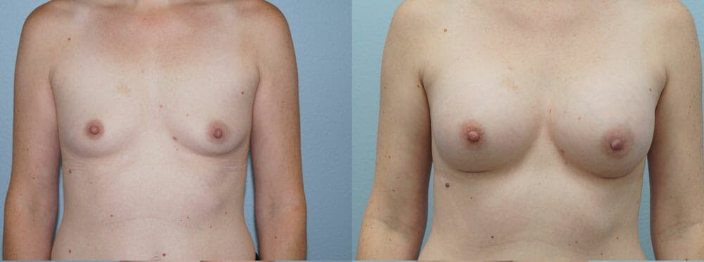 Breast Augmentation Gallery - Patient 48821312 - Image 1
