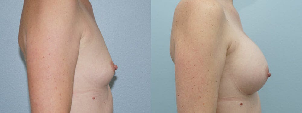Breast Augmentation Gallery - Patient 48821312 - Image 2