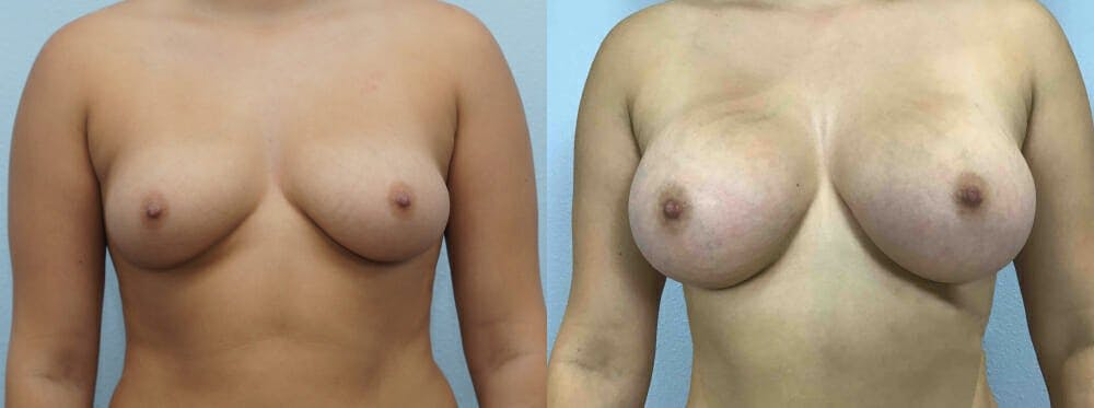 Breast Augmentation Gallery - Patient 48821314 - Image 1