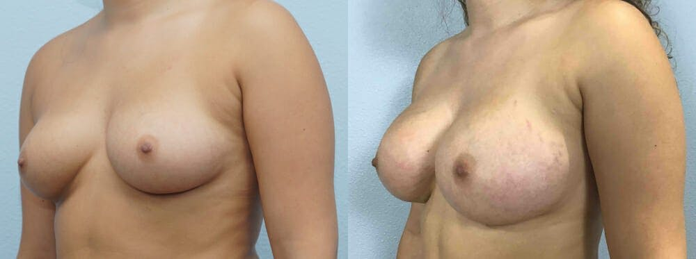 Breast Augmentation Gallery - Patient 48821314 - Image 4