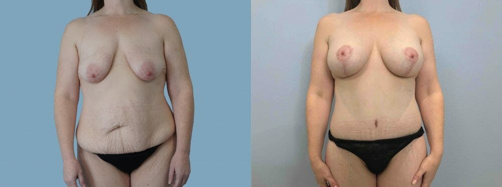 Mommy Makeover Gallery - Patient 49139734 - Image 1