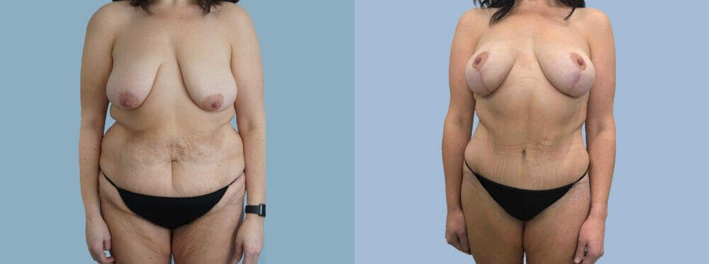 Mommy Makeover Gallery - Patient 49139745 - Image 1