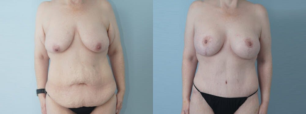 Mommy Makeover Gallery - Patient 49139758 - Image 1