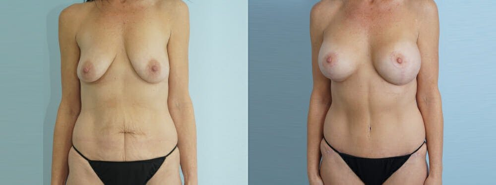 Mommy Makeover Gallery - Patient 49139794 - Image 1