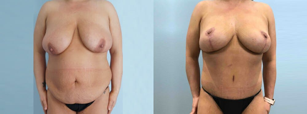 Mommy Makeover Gallery - Patient 49139795 - Image 1
