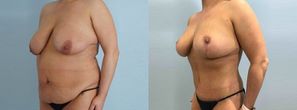 Mommy Makeover Gallery - Patient 49139795 - Image 5