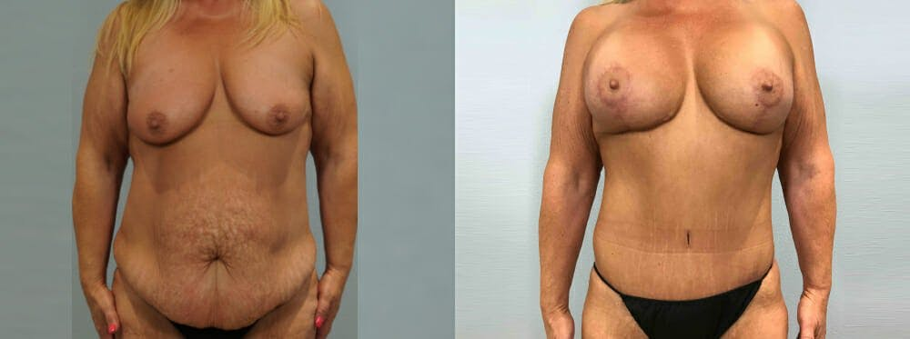 Mommy Makeover Gallery - Patient 49139803 - Image 1