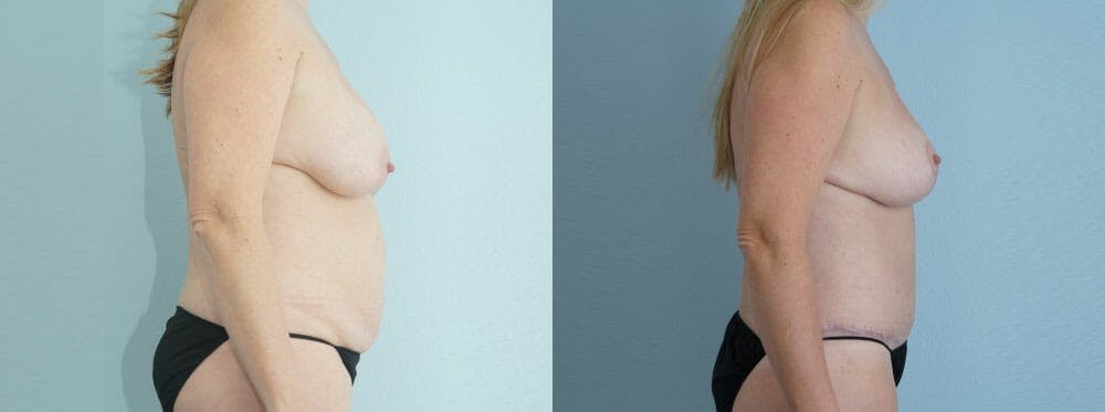 Mommy Makeover Gallery - Patient 49139806 - Image 4