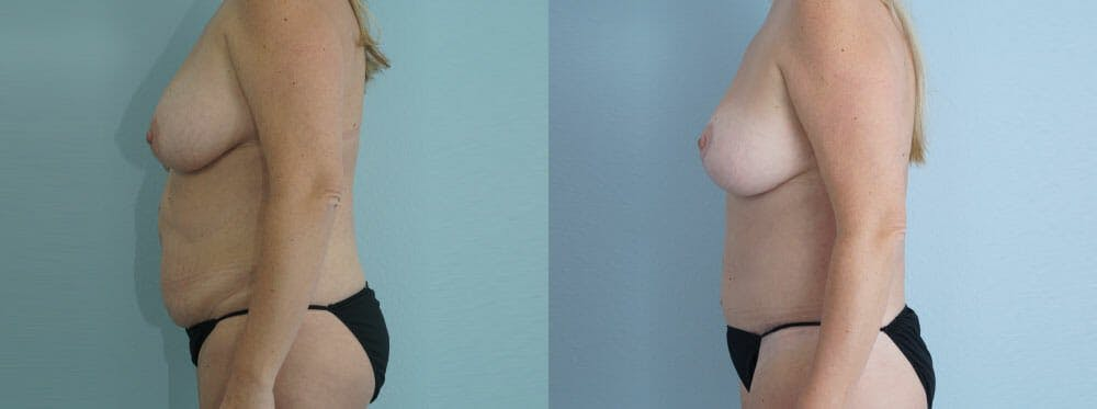 Mommy Makeover Gallery - Patient 49139806 - Image 6