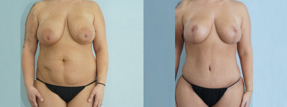 Mommy Makeover Gallery - Patient 49139809 - Image 1