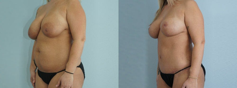 Mommy Makeover Gallery - Patient 49139809 - Image 3