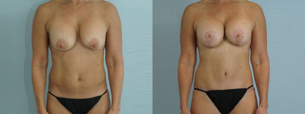 Mommy Makeover Gallery - Patient 49139818 - Image 1