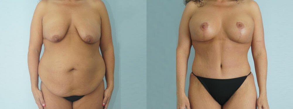 Mommy Makeover Gallery - Patient 49139819 - Image 1