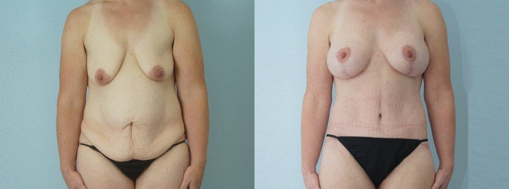 Mommy Makeover Gallery - Patient 49139830 - Image 1