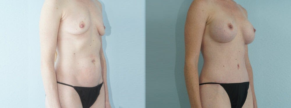 Mommy Makeover Gallery - Patient 49139832 - Image 2