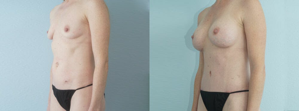 Mommy Makeover Gallery - Patient 49139832 - Image 4