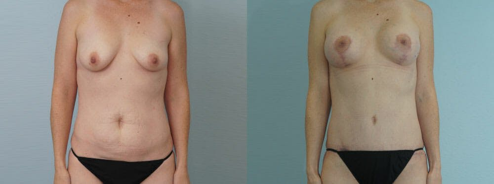 Mommy Makeover Gallery - Patient 49139836 - Image 1