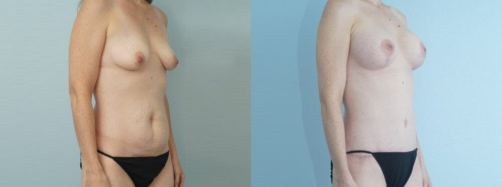 Mommy Makeover Gallery - Patient 49139836 - Image 2