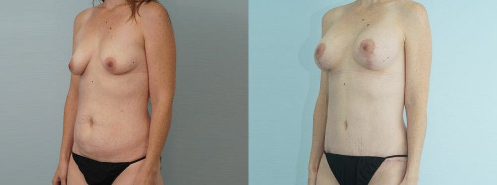 Mommy Makeover Gallery - Patient 49139836 - Image 4