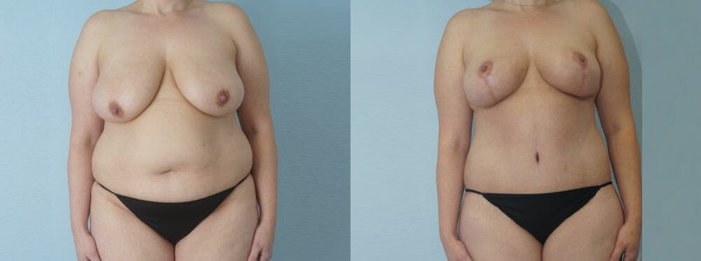 Mommy Makeover Gallery - Patient 49139838 - Image 1