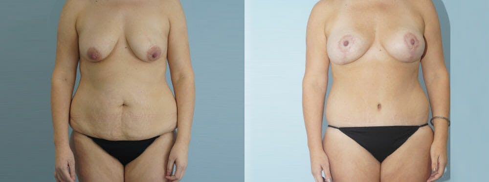 Mommy Makeover Gallery - Patient 49139849 - Image 1