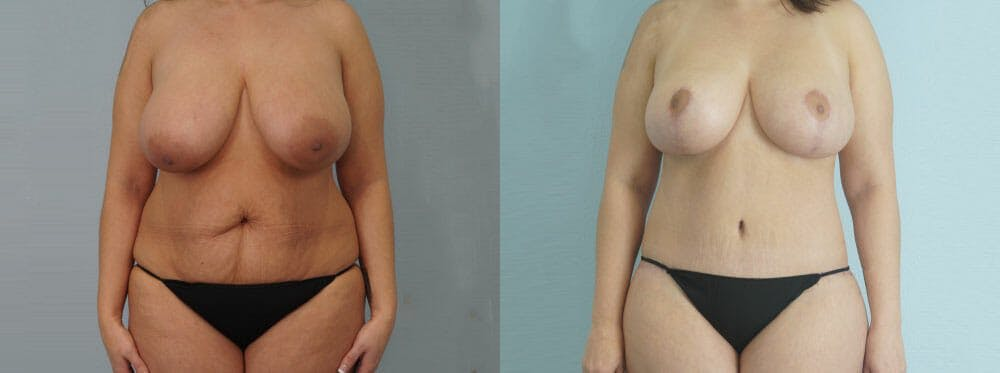 Mommy Makeover Gallery - Patient 49139857 - Image 1