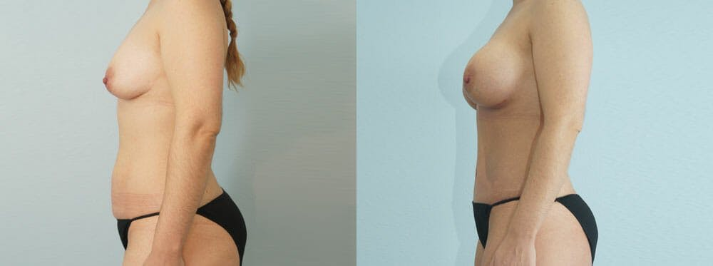 Mommy Makeover Gallery - Patient 49139859 - Image 3