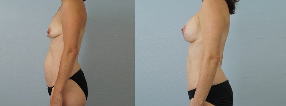 Mommy Makeover Gallery - Patient 49139863 - Image 2