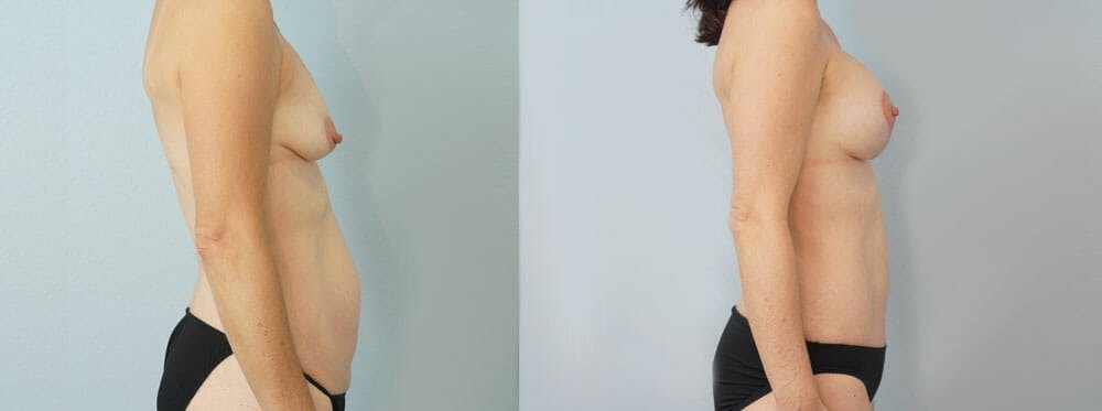 Mommy Makeover Gallery - Patient 49139863 - Image 3
