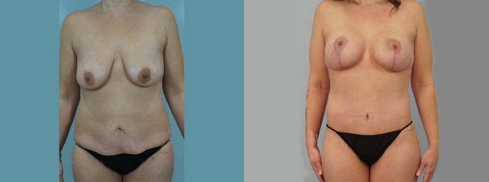 Mommy Makeover Gallery - Patient 49139866 - Image 1