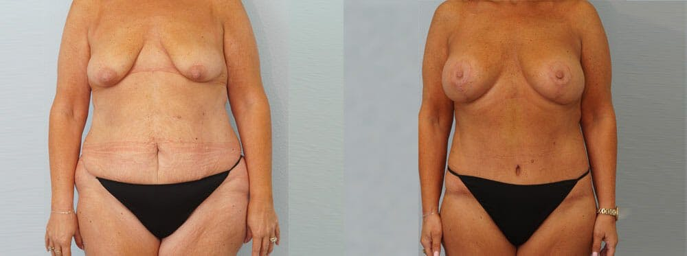 Mommy Makeover Gallery - Patient 49139867 - Image 1