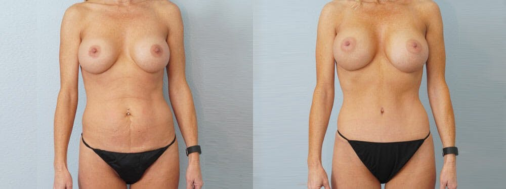 Mommy Makeover Gallery - Patient 49139868 - Image 1