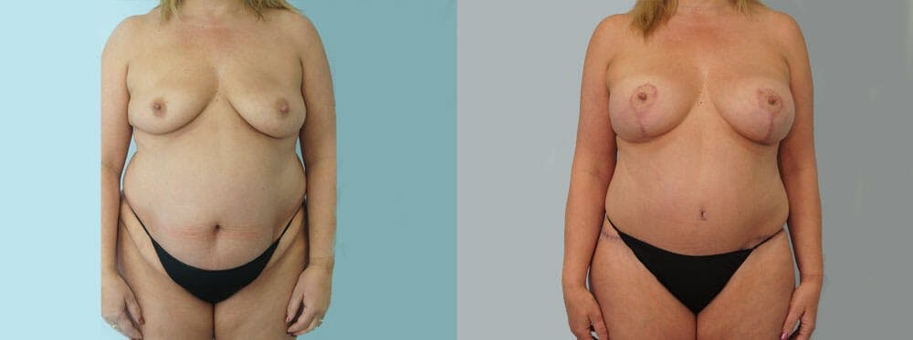 Mommy Makeover Gallery - Patient 49139874 - Image 1