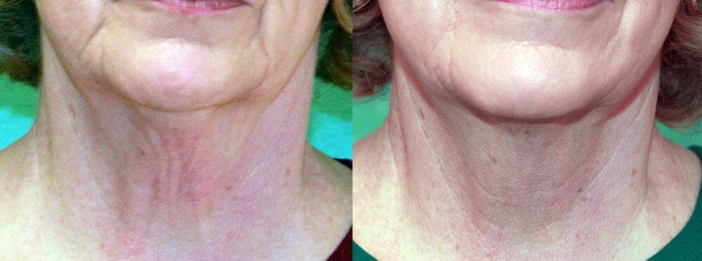 Skin Tightening and Wrinkle Reduction Gallery - Patient 49140174 - Image 1