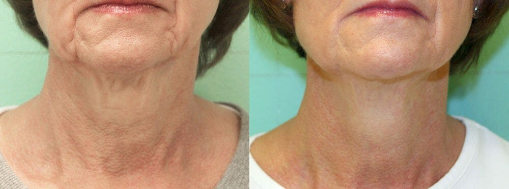 Skin Tightening and Wrinkle Reduction Gallery - Patient 49140178 - Image 1