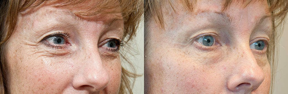 Skin Tightening and Wrinkle Reduction Gallery - Patient 49140183 - Image 1