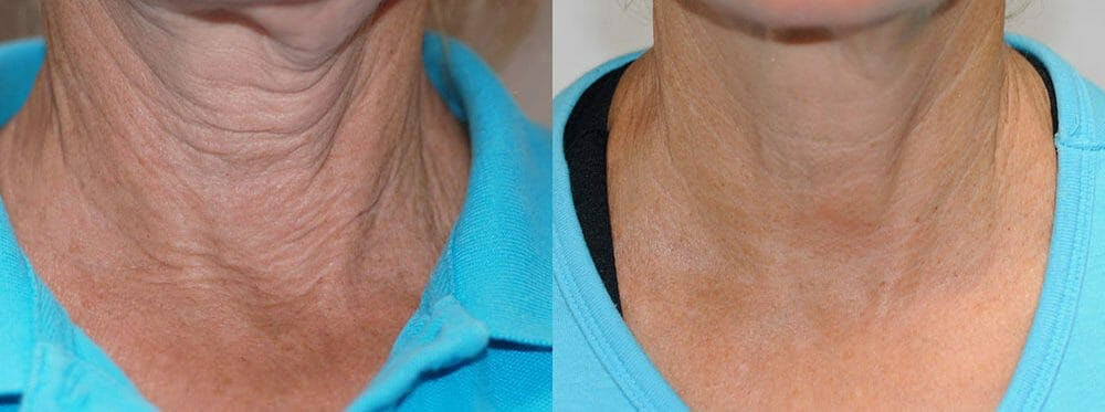 Skin Tightening and Wrinkle Reduction Gallery - Patient 49140185 - Image 1