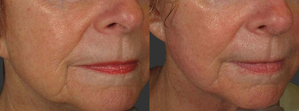 Skin Tightening and Wrinkle Reduction Gallery - Patient 49140186 - Image 1