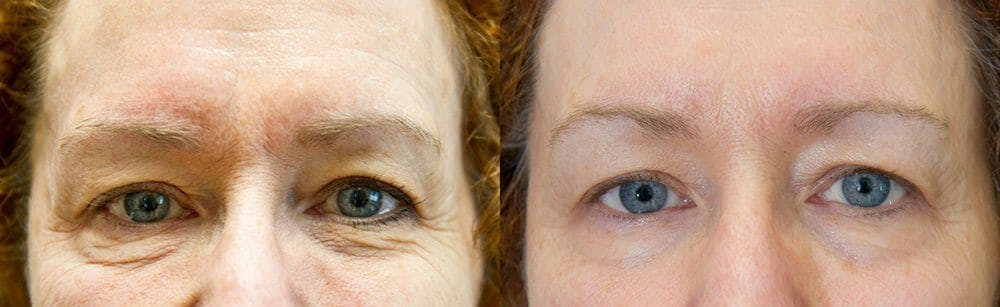 Skin Tightening and Wrinkle Reduction Gallery - Patient 49140190 - Image 1
