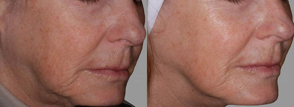 Skin Tightening and Wrinkle Reduction Gallery - Patient 49140196 - Image 1