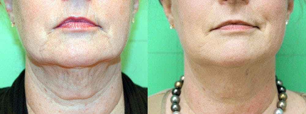 Skin Tightening and Wrinkle Reduction Gallery - Patient 49140199 - Image 1