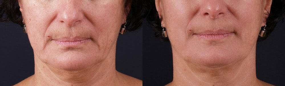 Skin Tightening and Wrinkle Reduction Gallery - Patient 49140202 - Image 1