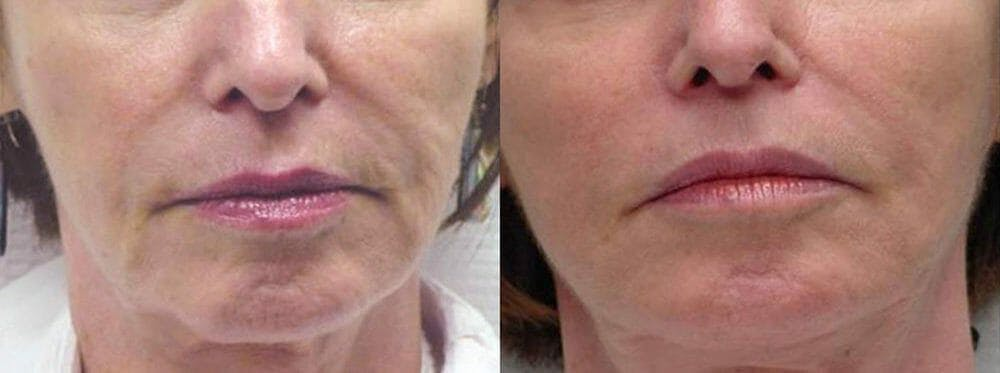 Skin Tightening and Wrinkle Reduction Gallery - Patient 49140203 - Image 1
