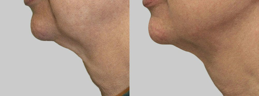 Skin Tightening and Wrinkle Reduction Gallery - Patient 49140205 - Image 1