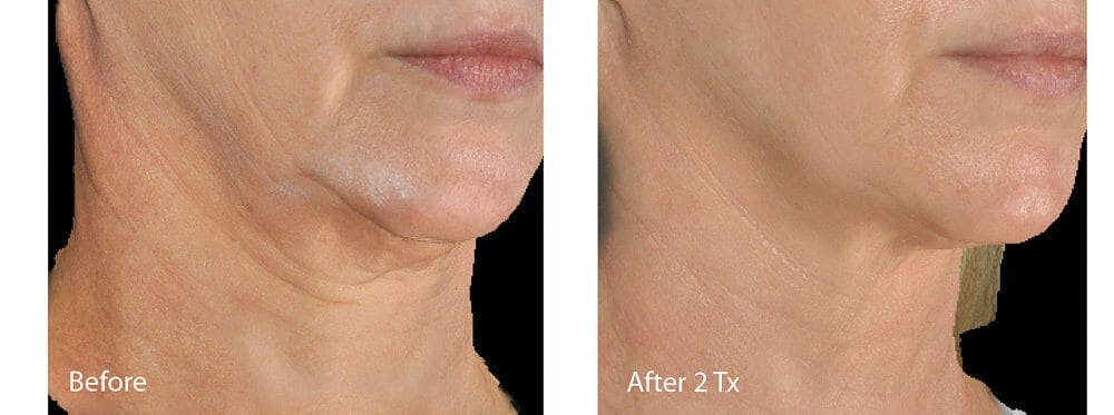 Skin Tightening and Wrinkle Reduction Gallery - Patient 49140210 - Image 1