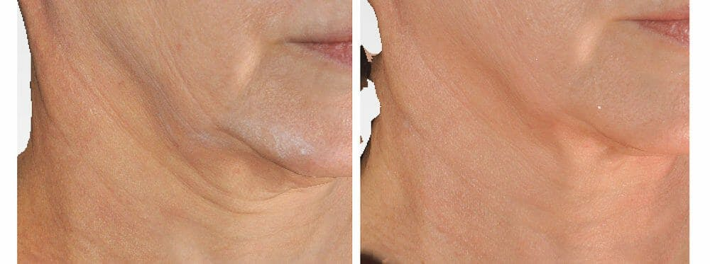 Skin Tightening and Wrinkle Reduction Gallery - Patient 49140211 - Image 1